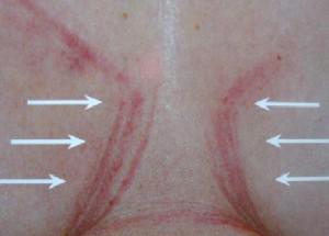 irritatie onder borsten